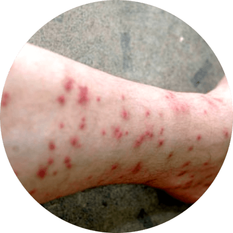 Bites from sand flies